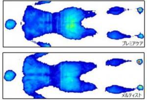 体圧分散図.jpgのサムネイル画像